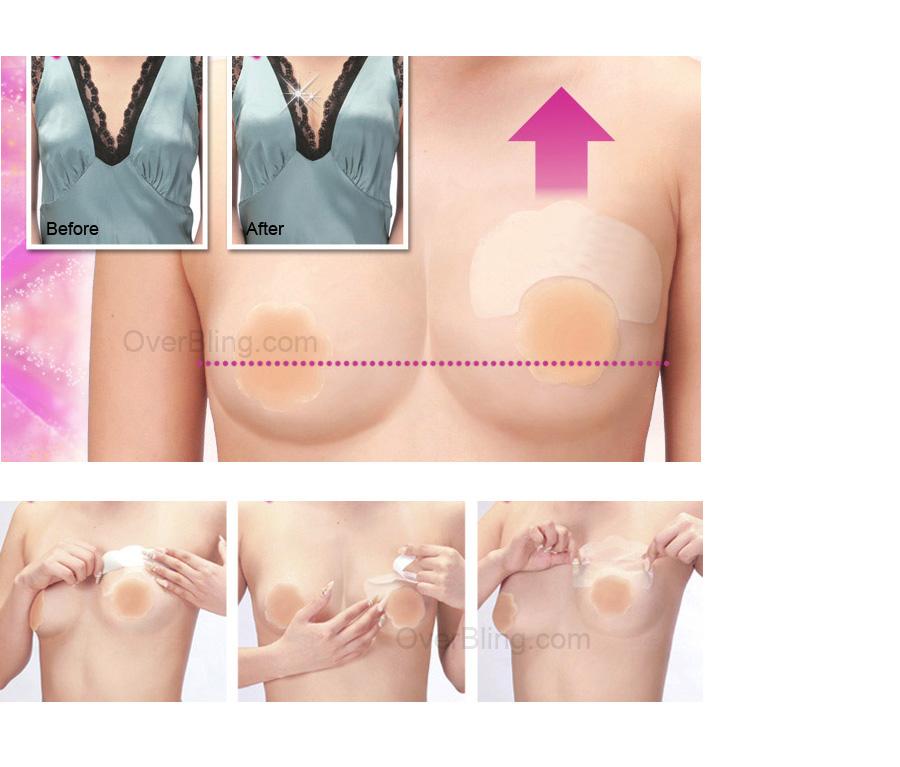 подтяжка груди без увеличения