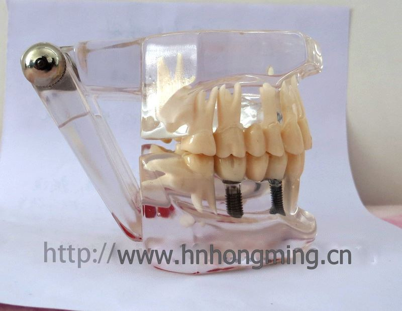 Abutment Abutment Tooth Preparation