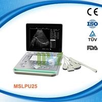 MSLPU24R newest medical equipment portable/ laptop ultrasound scanner price