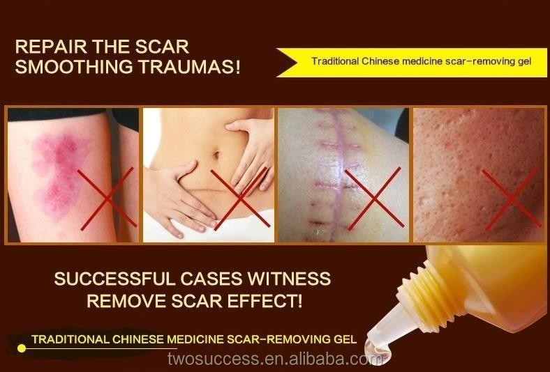 scar removal cream OEM .jpg