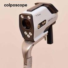 Vaginal colposcopio instrumento / colposcopio foto vagina ,
