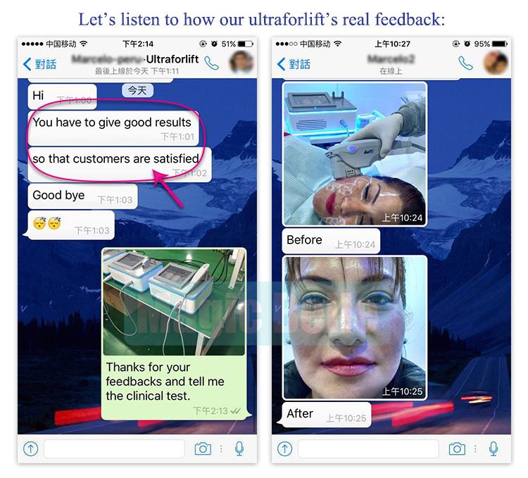 Máquina HIFU portátil! 5 Cabeças de Máquina De Lifting Facial/HIFU Máquina de Emagrecimento com o Ensino de Vídeo