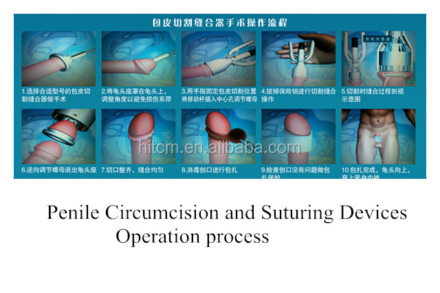 recovery time after adult circumcisions