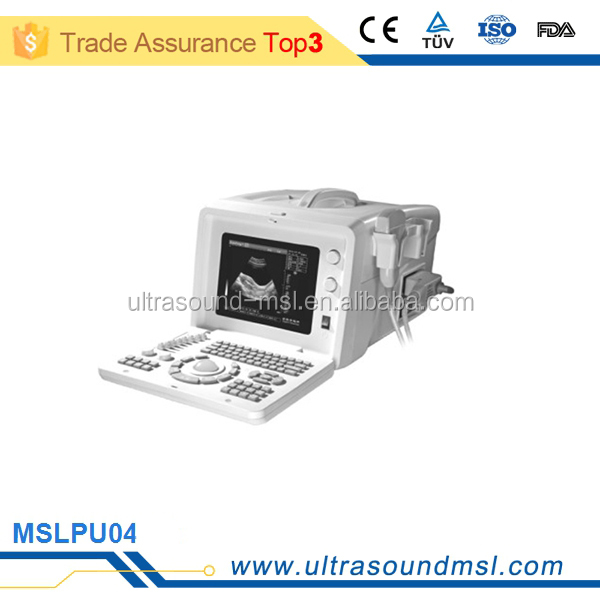 at home ultrasound machine for pregnancy