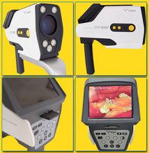 digital optical colposcopes/colposcope software/plastic vagina images picture