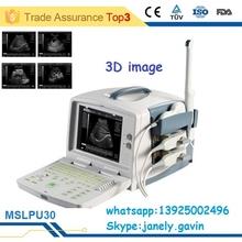 (MSLPU30-E)3D Digital Laptop Portable Ultrasound Scanner With Convex Probe