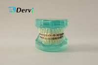 Human teeth and gums model for study with ortho metal & ceramic bracket