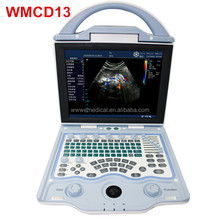 WMCD13 Portable Full Digital Color Doppler Ultrasound scanner for Human