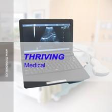 Economical Mini Laptop Full Digital VET Ultrasound Scanner