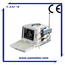 Digital Ultrasound Diagnostic Best Ultrasound Machine Using Black and White Medical CRT Display