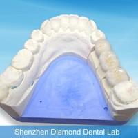 Dental porcelain PFM false teeth Dental PFM Crowns