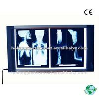 double connections x ray film viewer HKX1705