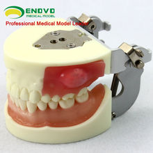 Oral Surgery Area Training Model Incision Pus Removal Practice Model