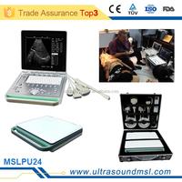 MSLPU24Z Premium selected portable pc medical echo ultrasound scanner for sale