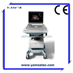 Color Doppler Ultrasound Medical Ultrasound Machine with 3D Optional Functions