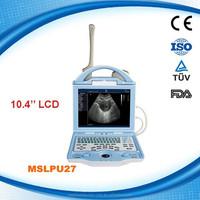10.4 inch MSLPU27S full digital B scan Laptop ultrasound