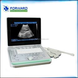 cardiac ultrasound machine with doppler,portable cardiac echo machine