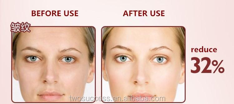 Eye Wrinkle Remover Machine .jpg
