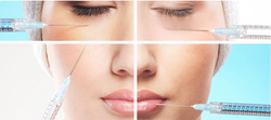 manufacture Restore Our Skin Facial Contours Hyaluronic Acid Dermal Fillers Hyaluron Filler Injection