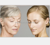 injectable hyaluronic acid facial dermal filler for remove wrinkles, cosmetic Finelines 2.0ml