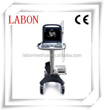 Sonoscape S2BW ecography Discovery 3d Color Doppler Trolley Ultrasound With Ce Fda