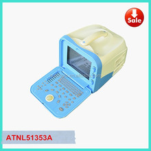 ATNL51353A B&W Digital Portable Ultrasound Machine Price