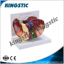 Pathology Liver Model