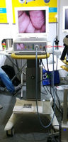 China well-sold vagina video endoscope/endoscope camera for laparoscopy