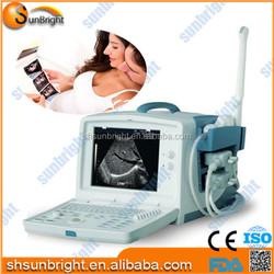 Ultrasound equipment abdominal machine with manufacture price/Cheap ultrasound