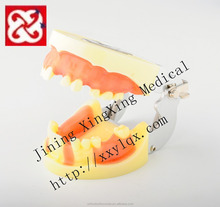 Implant practice model