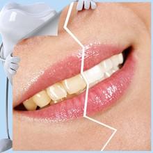2015 China mejores productos activo cuidado Oral para blanquear los dientes