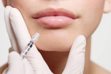 HA sodium hyaluronate dermal filler for wrinkle treatment