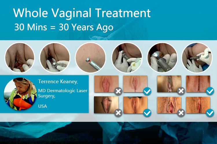 Vaginal laser tightening