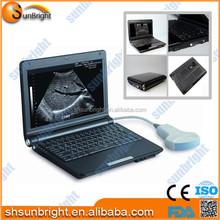 Digital laptop ultrasound scanner/Laptop ultrasound