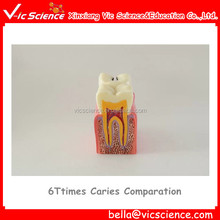 6Times Caries Comparation Model