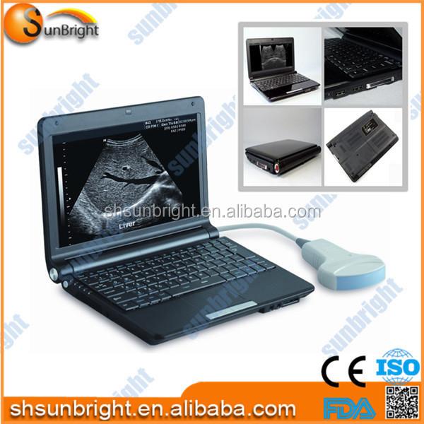 portable laptop ultrasound machine