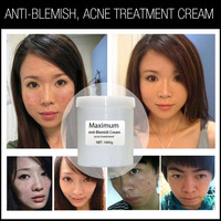 2015 Best Acne Scar Removal Anti Blemish Cream