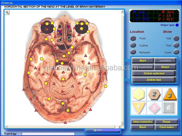 Professional 3d nls quantum health analyzer