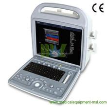 Factory Price Digital Portable Laptop Ultrasound Machine Made in China MSLPU06H