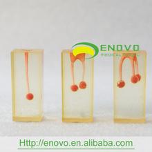 EN-N4 Transparent Block Root Canal Filling Demo Dental Model