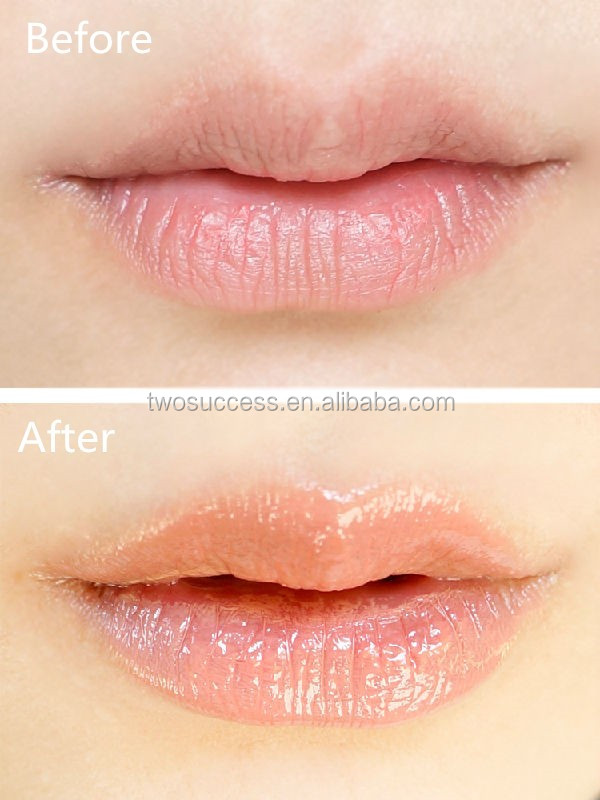 Lip Gloss (11)