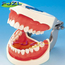 typodont teeth model with removable screw teeth