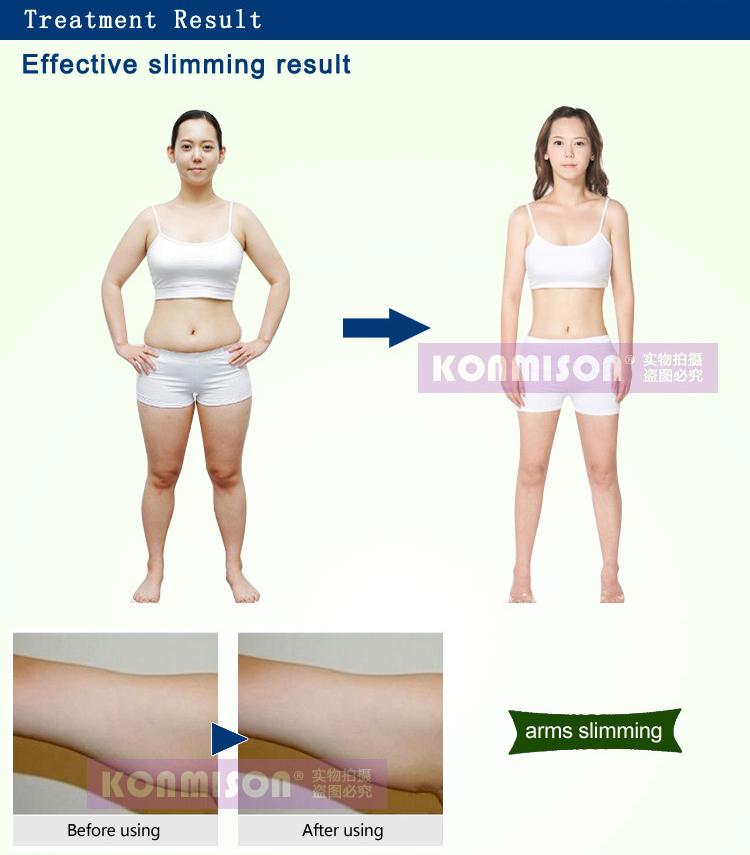 Home use cavitation rf machine body slimming