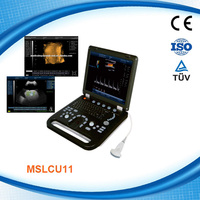 MSLCU11T Advanced portable color doppler medical ultrasound body scanning machine