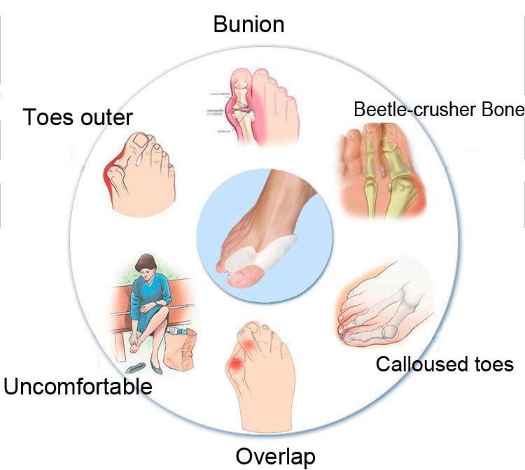 feet care valgus 5