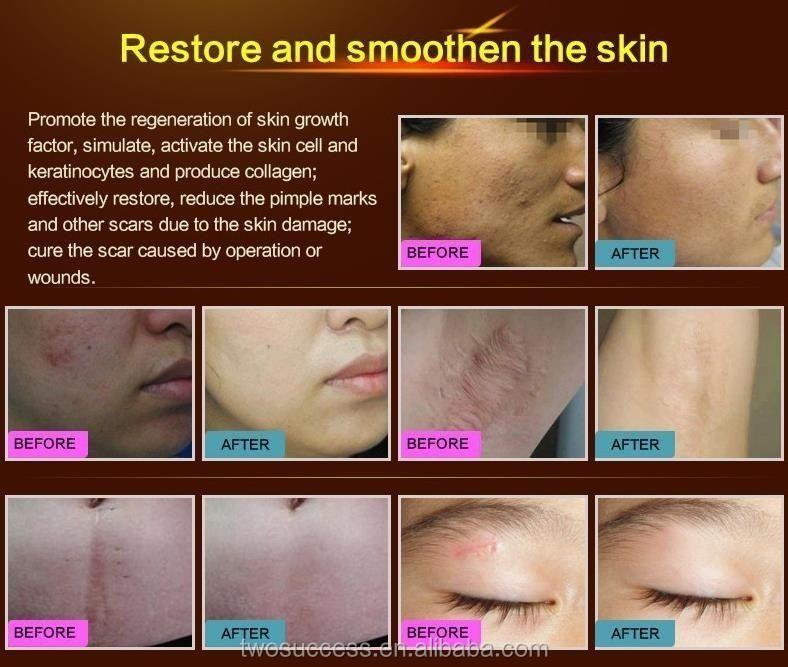 OEM Acne Removing and Anti Acne Cream (2).jpg