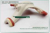 Товары для изучения медицины cmam] ,  CMAM-Pregnancy
