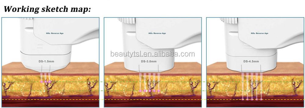 Vente chaude stationnaire tous les âges appropriés rides lésion de la peau rajeunissement HIFU appareils