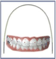 niti arch wires tooth color
