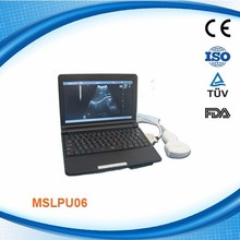 MSLPU06 portable/notebook ultrasound unit